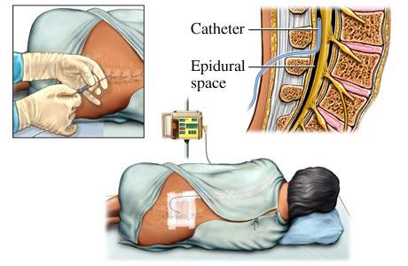 Ce este mai bine anestezia epidurală sau generală pentru varice