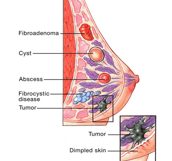 Totul despre fibroadenomul mamar
