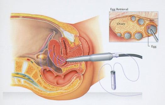 Donarea de ovule – proceduri medicale