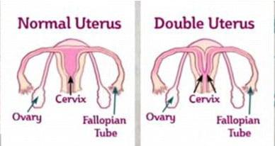 Uterul didelf (uterul dublu)