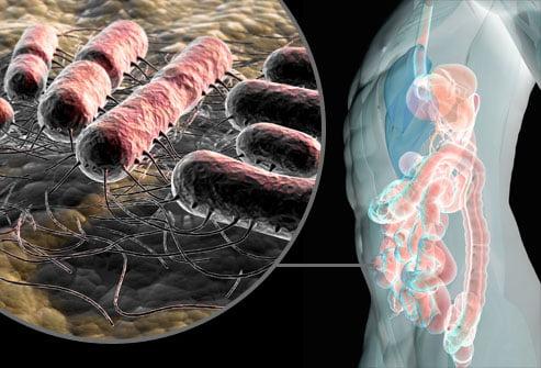 Infectie genitala cu e coli simptome