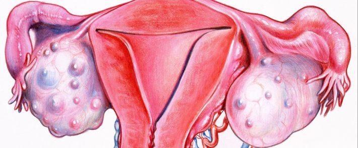 Lucruri pe care trebuie sa le stie orice femeie despre chisturile ovariene